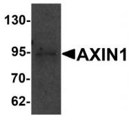 NBP1-76483 - Axin-1