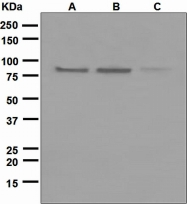 NBP1-95575 - Axin-2