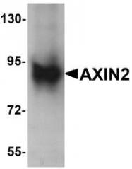 NBP1-76526 - Axin-2