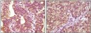 NBP1-47555 - B-Raf proto-oncogene