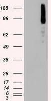 NBP1-47668 - B-Raf proto-oncogene