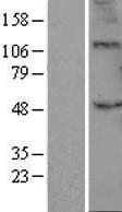 NBL1-07877 - B3GALT2 Lysate