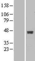 NBL1-07878 - B3GALT4 Lysate