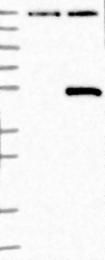 NBP1-88952 - B3GNT1 / B3GNT6