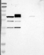 NBP1-88662 - B4GALNT1