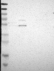 NBP1-88654 - B4GALT1