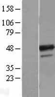 NBL1-07889 - B4GALT3 Lysate