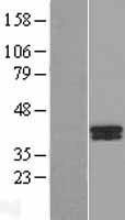NBL1-07891 - B4GALT7 Lysate
