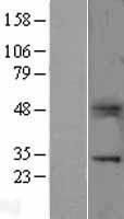 NBL1-17768 - B7H4 Lysate