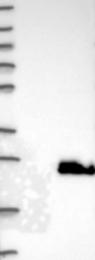 NBP1-89443 - BAALC