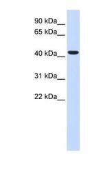 NBP1-62416 - BACE1