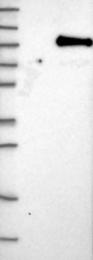 NBP1-83149 - BAP1