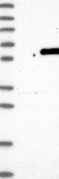 NBP1-86248 - BBS4
