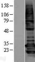 NBL1-07934 - BCAP31 Lysate