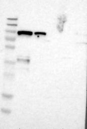 NBP1-82523 - BCAR3 / SH2D3B
