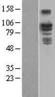 NBL1-07936 - BCAR3 Lysate
