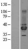NBL1-07938 - BCAT1 Lysate