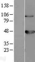 NBL1-07945 - BCKDK Lysate