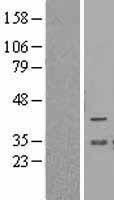 NBL1-07947 - BCL2L12 Lysate