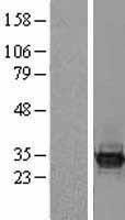 NBL1-07955 - BCL7C Lysate