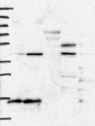 NBP1-88677 - BCS1L / BCS1