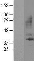 NBL1-07959 - BDKRB1 Lysate