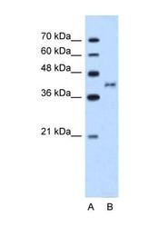 NBP1-59044 - BDKRB2