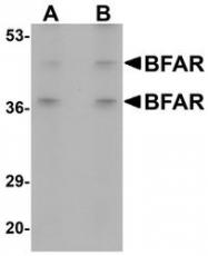 NBP1-77111 - BFAR / RNF47