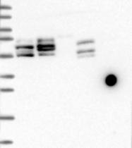 NBP1-94171 - BICC1