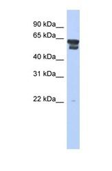 NBP1-55141 - Bleomycin hydrolase