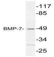 NBP1-51257 - BMP7