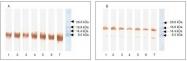 NB200-440 - Brain Natriuretic Peptide (BNP32)