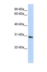 NBP1-53186 - Bisphosphoglycerate mutase