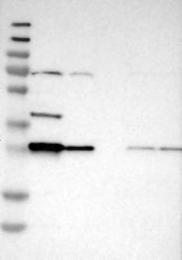 NBP1-86064 - Bisphosphoglycerate mutase
