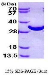 NBP1-44485 - Bisphosphoglycerate mutase