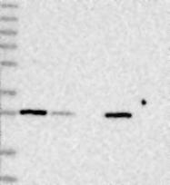 NBP1-88373 - VACVase