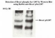 NB100-225 - BRCA1 / RNF53