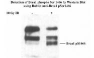 NB100-228 - BRCA1 / RNF53