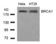 NB100-81826 - BRCA1 / RNF53
