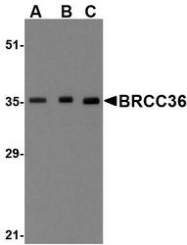 NBP1-76831 - BRCC3