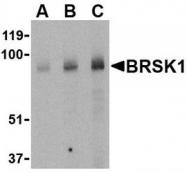 NBP1-77280 - BRSK1