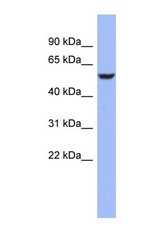 NBP1-57320 - BRUNOL4 / CELF4
