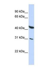 NBP1-57256 - BRUNOL6 / CELF6