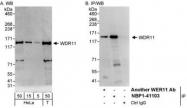 NBP1-41103 - WDR11