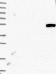 NBP1-84215 - BTBD3
