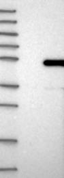 NBP1-88672 - BTBD6 / BDPL