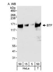 NB100-1704 - BCLAF1 / BTF