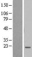 NBL1-08046 - BTF3L4 Lysate