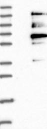 NBP1-88516 - BUB1A