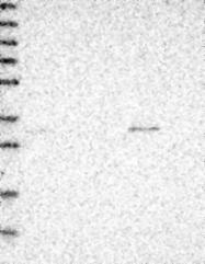 NBP1-83183 - BZW2
